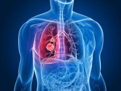 bronchitis diet